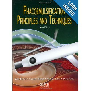 Phacoemulsification: Principles and Techniques: Lucio Buratto MD, David J. Apple MD, Liliana Werner MD PhD, Maurizio Zanini MD: 9781556426049: Books