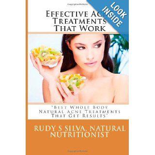 "Effective Acne Treatments That Work: ""Best Whole Body Natural Acne Treatments That Get Results"": Rudy Silva Silva: 9781482579239: Books"