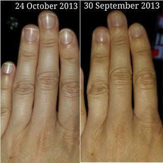 Mavala Stop   Helps Cure Nail Biting and Thumb Sucking, 0.3 Fluid Ounce  Nail Repair Products  Beauty